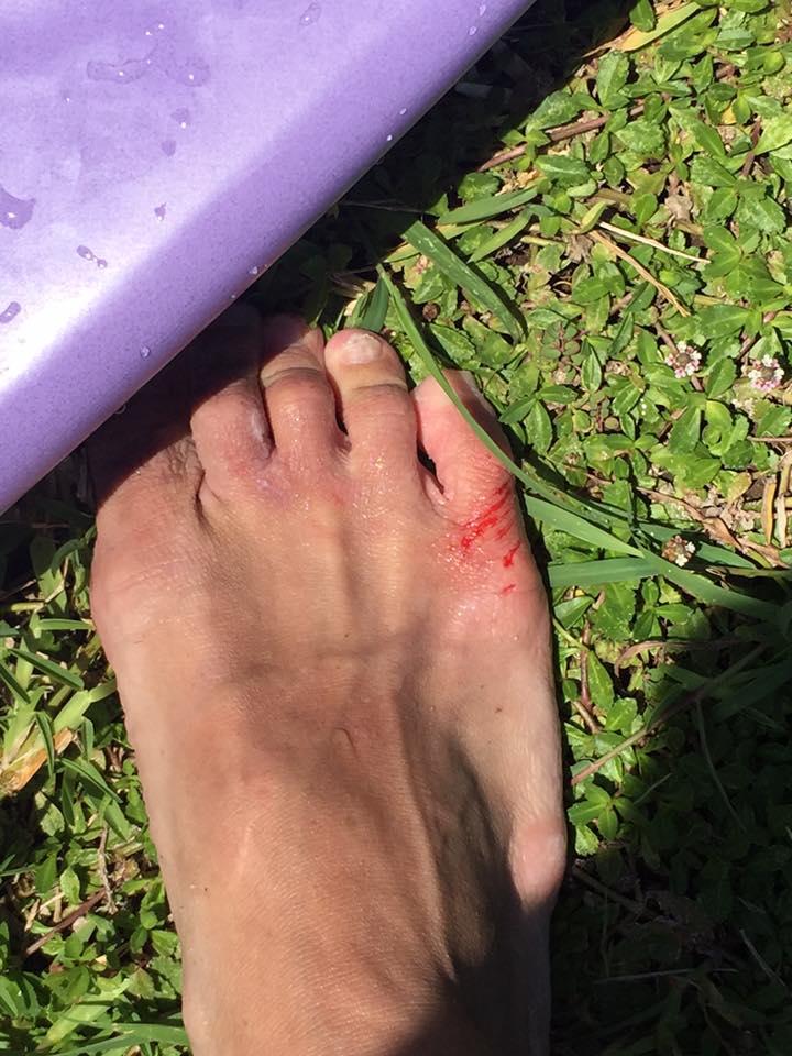 足 珊瑚で切った